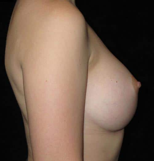 Breast Augmentation Patient Photo - Case 126 - after view-1