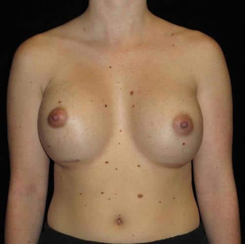 Breast Asymmetry Patient Photo - Case 104 - after view