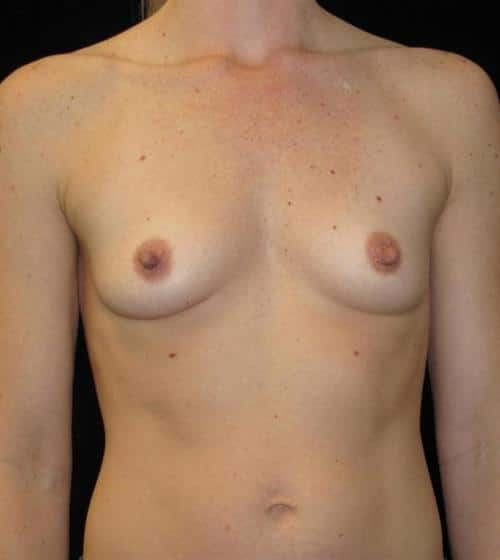 Breast Augmentation Patient Photo - Case 107 - before view-