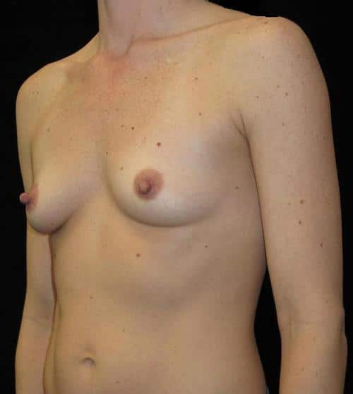 Breast Augmentation Patient Photo - Case 107 - before view-1
