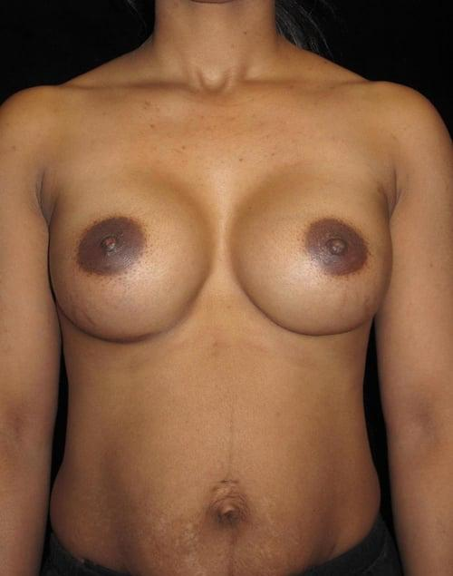 Breast Augmentation Patient Photo - Case 117 - after view
