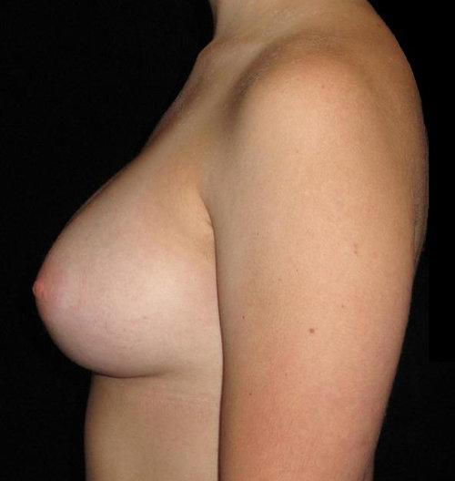 Breast Augmentation Patient Photo - Case 142 - after view-1