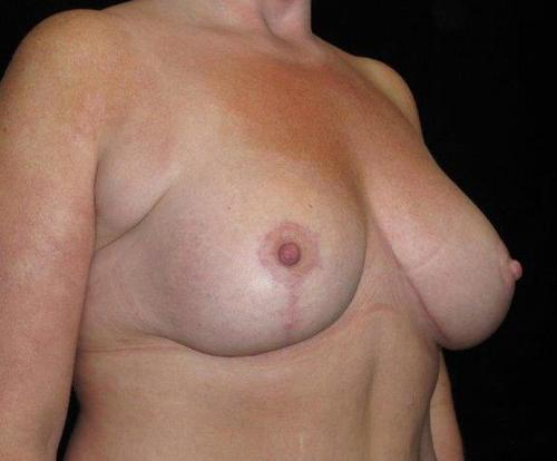 Breast Asymmetry Patient Photo - Case 110 - after view-1