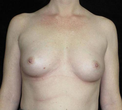 Breast Asymmetry Patient Photo - Case 144 - before view-