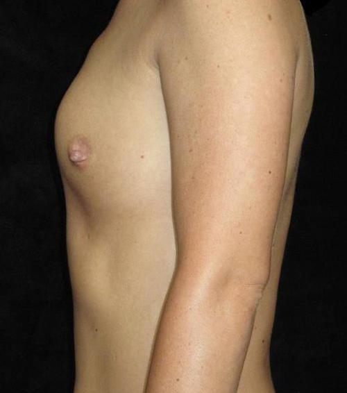 Breast Asymmetry Patient Photo - Case 151 - before view-1