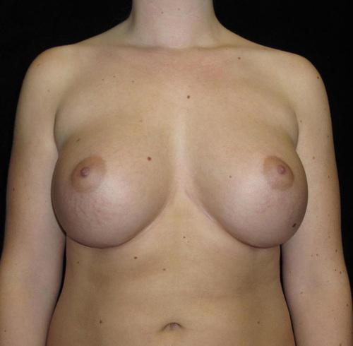 Breast Asymmetry Patient Photo - Case 123 - after view