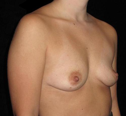 Breast Augmentation Patient Photo - Case 146 - before view-