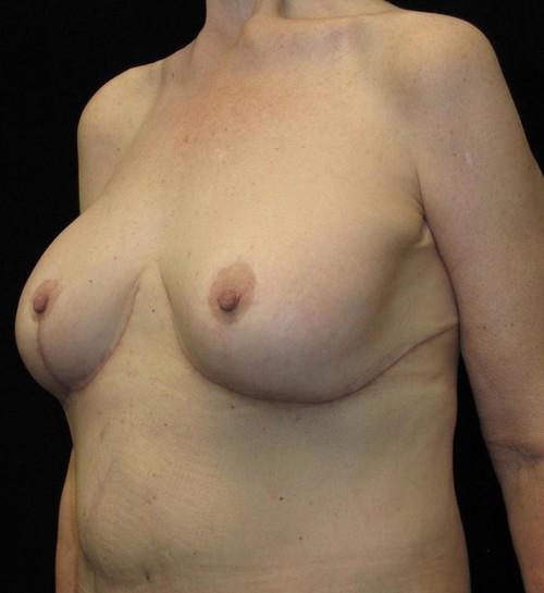 Breast lift with Augmentation Patient Photo - Case 97 - after view-1