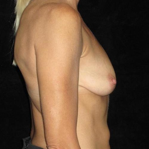 Breast Asymmetry Patient Photo - Case 201 - before view-2
