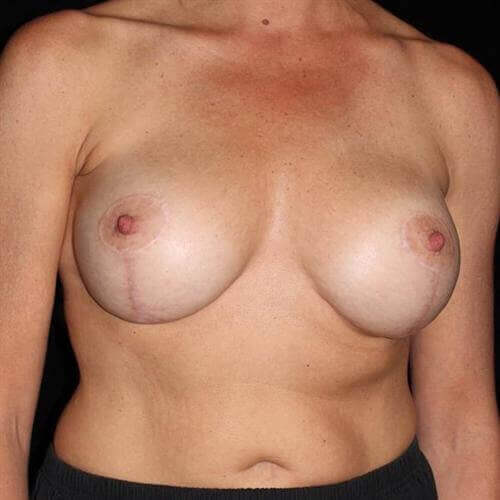 Breast Asymmetry Patient Photo - Case 201 - after view