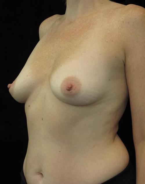 Breast Augmentation Patient Photo - Case 100 - before view-1