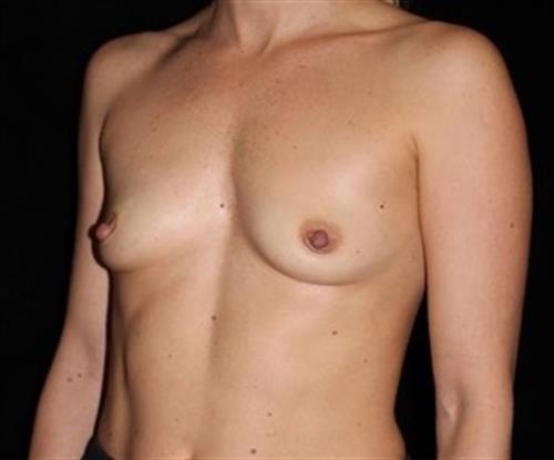 Breast Augmentation Patient Photo - Case 241 - before view-1