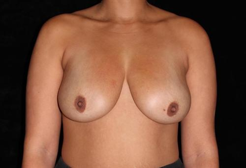 Breast Lift Patient Photo - Case 169 - before view-