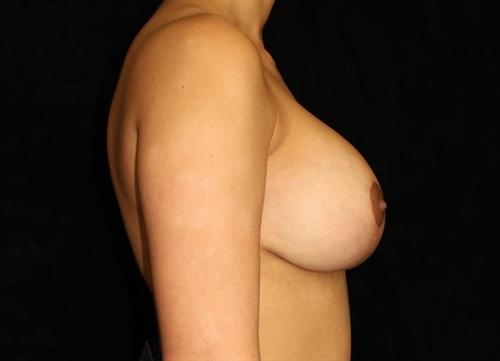Breast Lift Patient Photo - Case 169 - after view-2