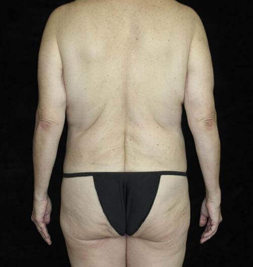 Body Lift Patient Photo - Case 188 - after view-3