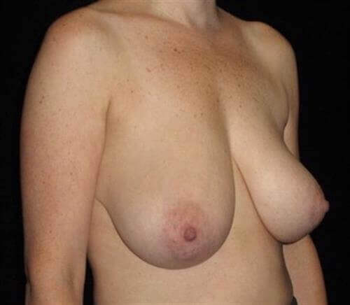 Breast Asymmetry Patient Photo - Case 235 - before view-1