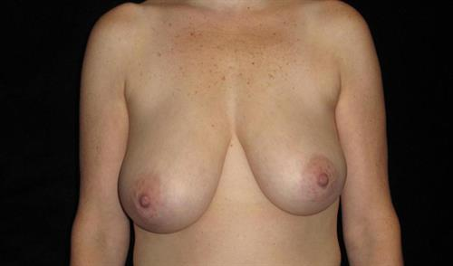Breast Asymmetry Patient Photo - Case 235 - before view-0