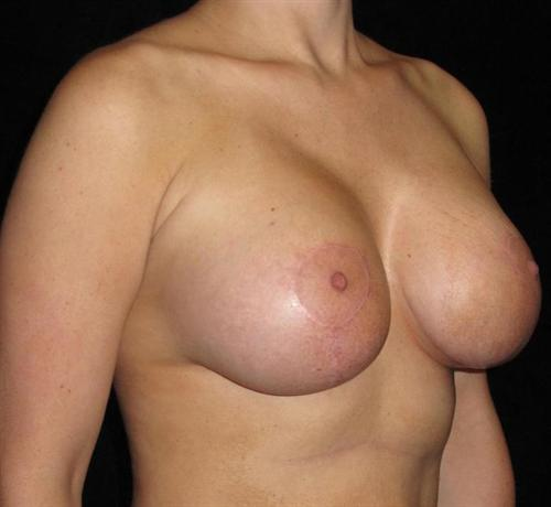 Breast Asymmetry Patient Photo - Case 138 - after view-1