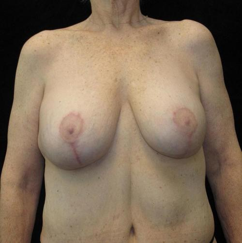 Breast lift with Augmentation Patient Photo - Case 102 - after view-1
