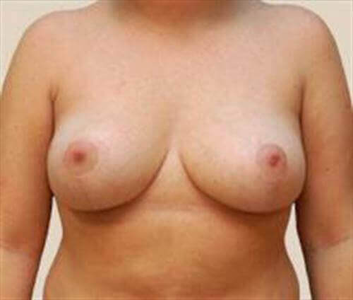Breast Lift Patient Photo - Case 159 - after view