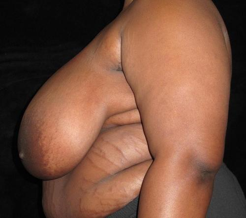 Breast Lift Patient Photo - Case 113 - before view-1