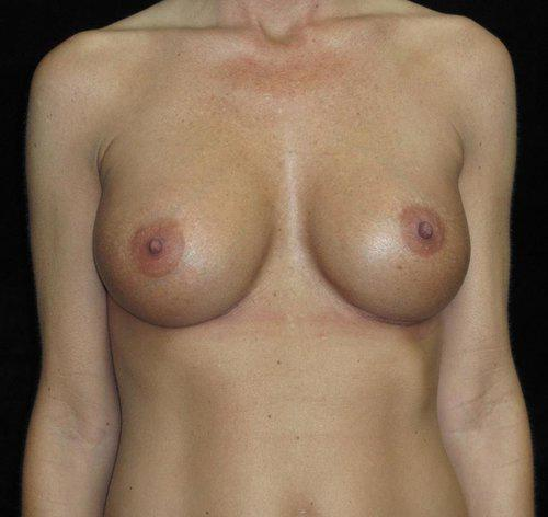 Breast Revision Patient Photo - Case 131 - after view
