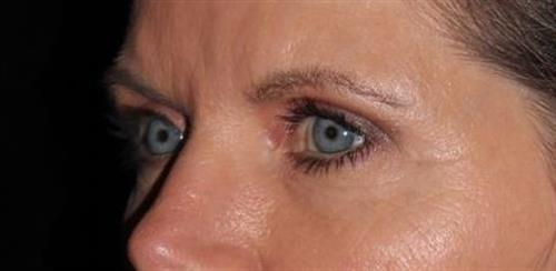 Eyelid Surgery Patient Photo - Case 248 - after view-1