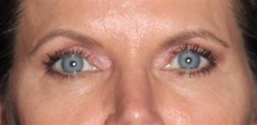 Eyelid Surgery Patient Photo - Case 248 - after view