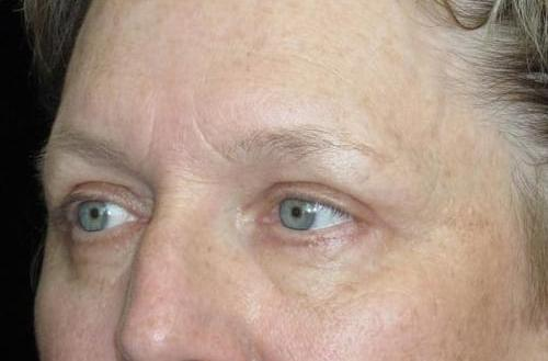 Eyelid Surgery Patient Photo - Case 47 - after view-1