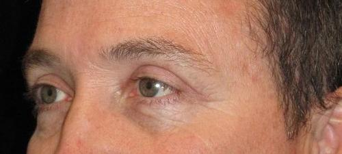 Eyelid Surgery Patient Photo - Case 45 - after view-1