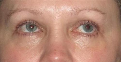 Eyelid Surgery Patient Photo - Case 1 - after view