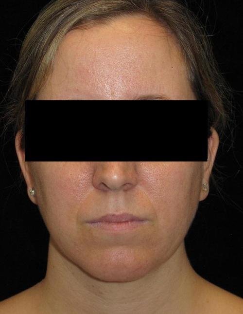 Facial Liposuction Patient Photo - Case 57 - after view-0