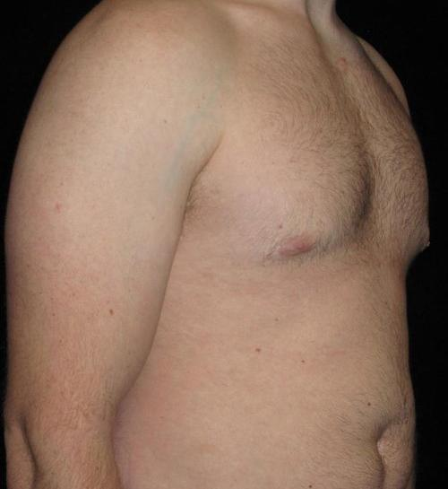 Male Breast Reduction Patient Photo - Case 28 - after view-1