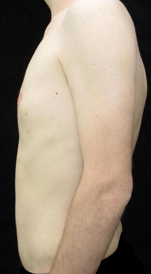 Male Breast Reduction Patient Photo - Case 25 - after view-1