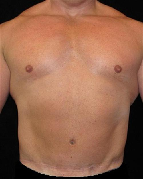 Male Body Contouring Patient Photo - Case 21 - after view-0