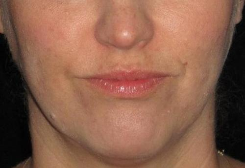 Botox Patient Photo - Case 4 - after view