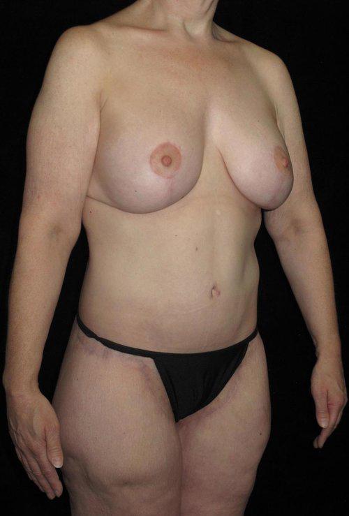 Body Lift Patient Photo - Case 62 - after view